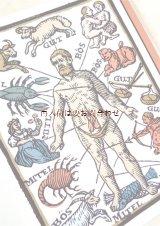 楽しい古本☆ 医学 歴史と文化 薬学 リウマチ性疾患 イラスト多数